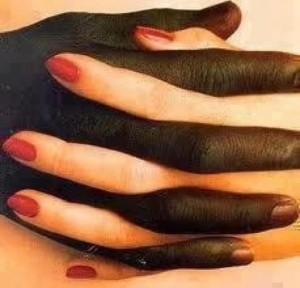 Sätt stopp för rasismen